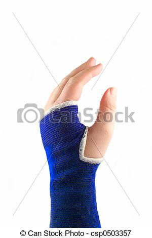 Picture of sling hand.