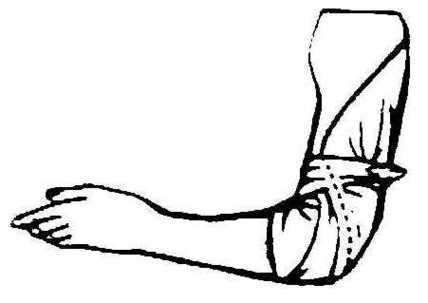 Elbow Clipart Clipart.