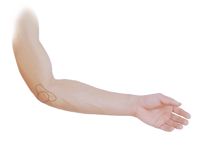 Elbow Pain Treatment Greater Manchester.