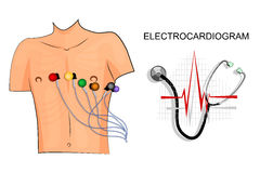 Electrodes Stock Illustrations.