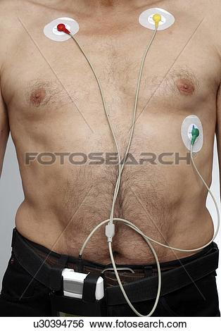 Stock Illustration of Man with ecg electrodes u30394756.