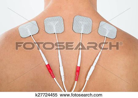 Stock Image of Man With Electrodes On His Back k27724455.