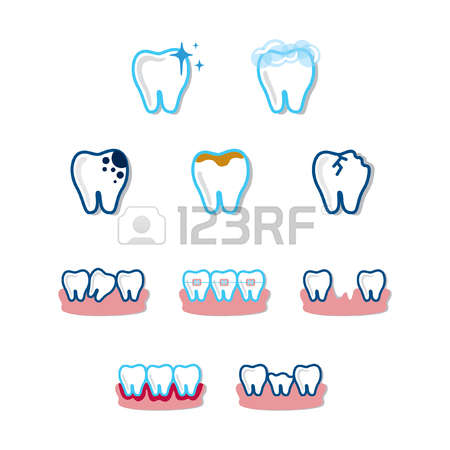 Caries Of Enamel Cliparts, Stock Vector And Royalty Free Caries Of.
