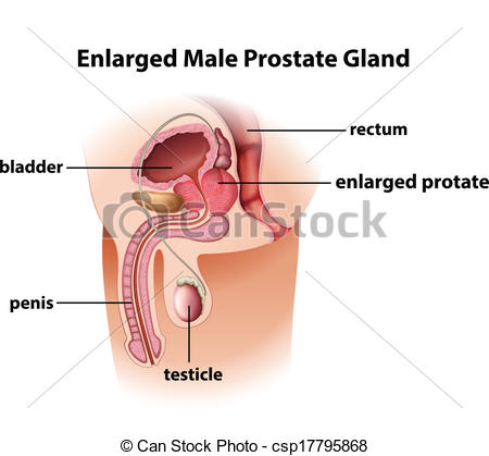 Clip Art Vector of Enlarged male prostate gland.