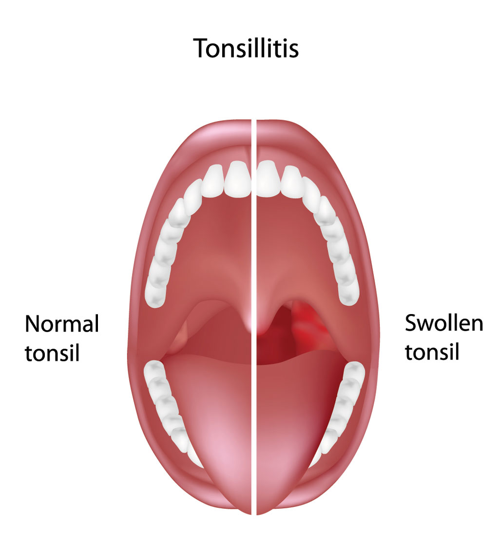 Swollen Mouth Clipart.