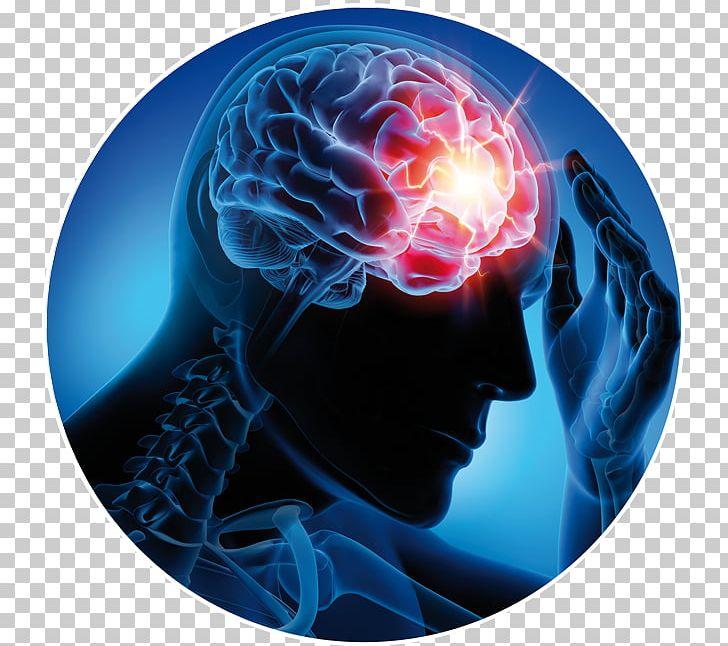 Neurological Disorder Neurology Epilepsy Neurorehabilitation.