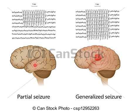 Clip Art Vector of Partial and generalized epilepsy.
