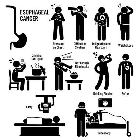 123 Esophageal Cancer Stock Illustrations, Cliparts And Royalty Free.