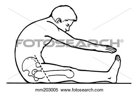 Stock Illustration of Back flexion, excessive mm203005.