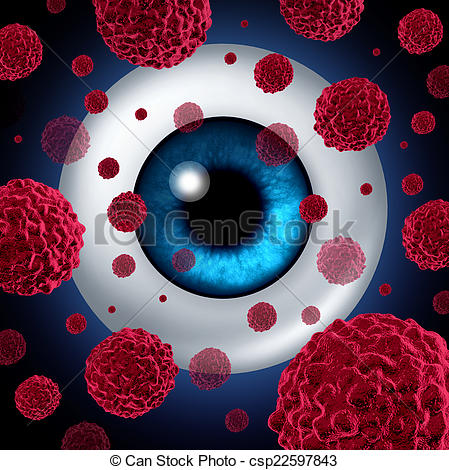 Stock Photo of Eye Cancer.