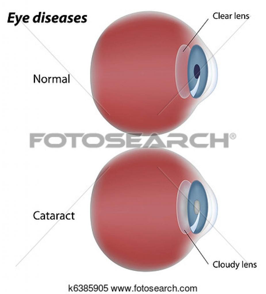 eyes diseases clipart eyes diseases clipart clipart of eye disease.