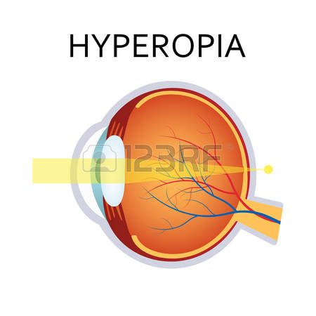 1,862 Eye Disease Stock Vector Illustration And Royalty Free Eye.