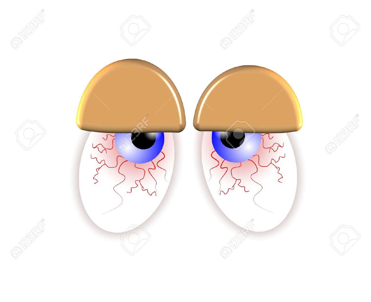 Eyes diseases clipart.