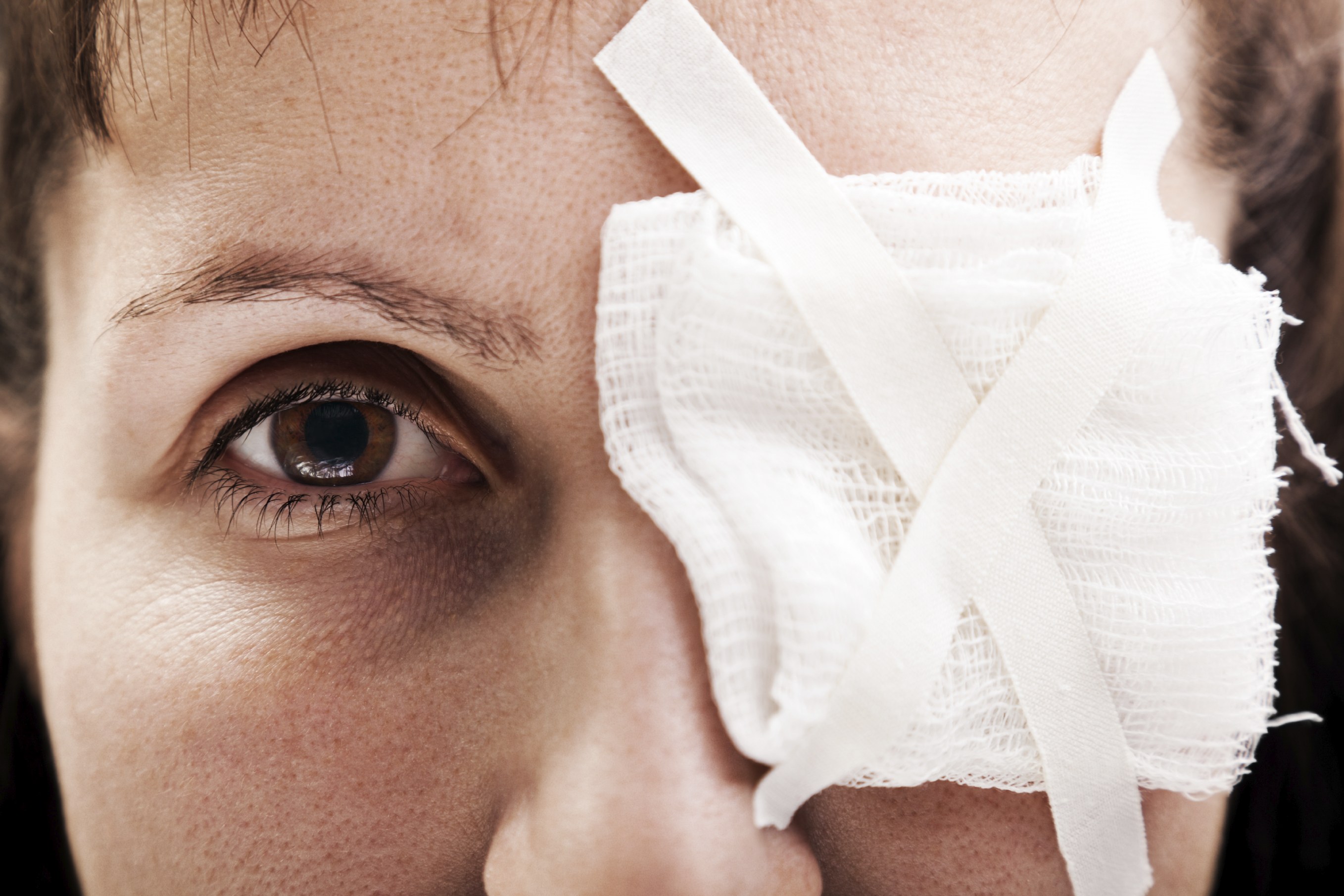 The most common causes of eye injuries in the U.S..