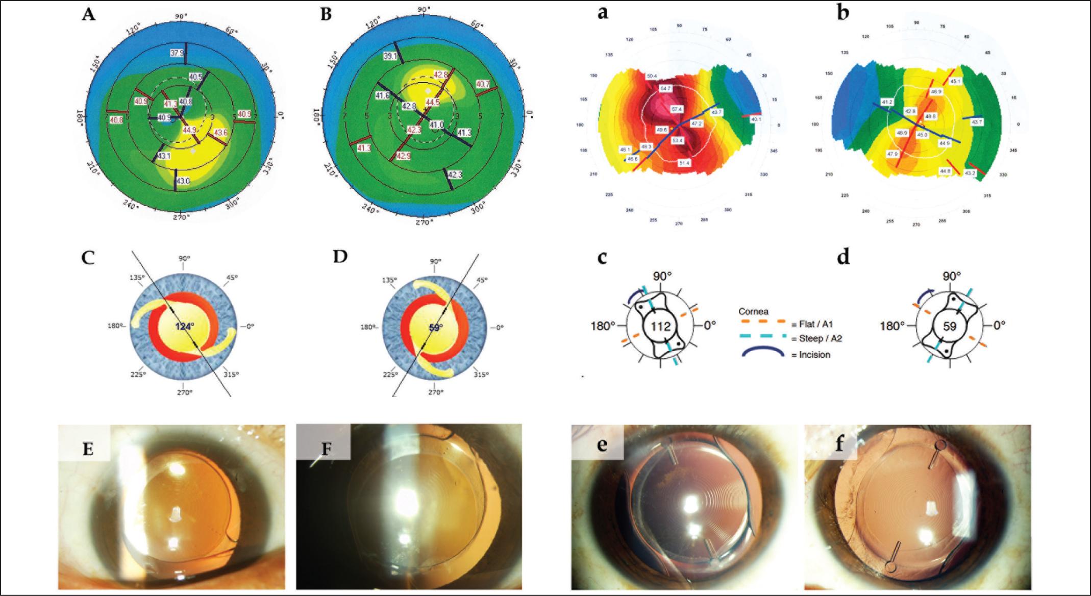 Multifocal Toric Intraocular Lens Implantation for Forme Fruste.
