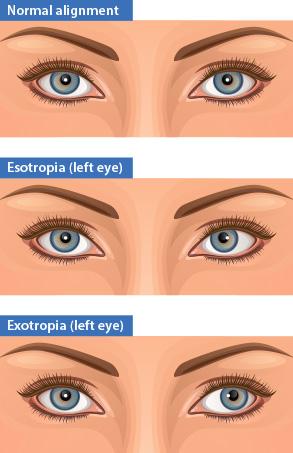 Normal eye alignment versus esotropia and exotropia. Strabismus.