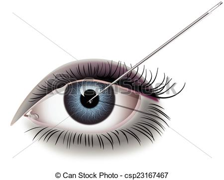 Clip Art Vector of NEEDLE EYE csp23167467.