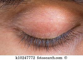 Eyelid Stock Photo Images. 6,257 eyelid royalty free images and.