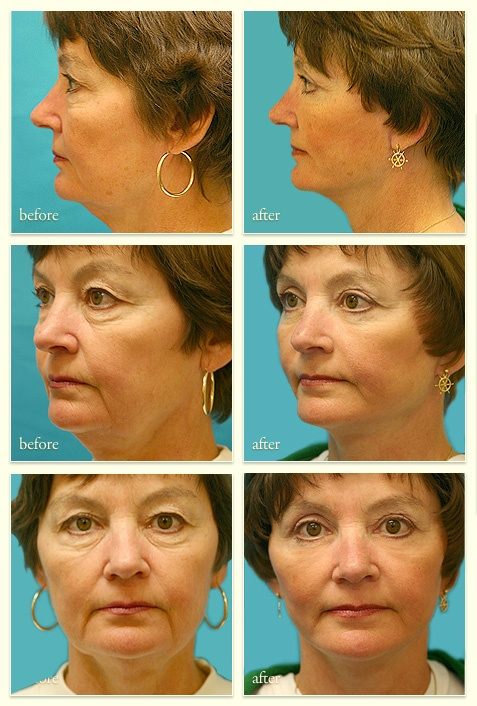 17 Best images about Face Lifts & Neck Lifts on Pinterest.