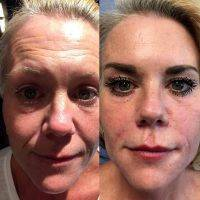 Cost Of Facelift In Portland Oregon » Facelift: Info, Prices.