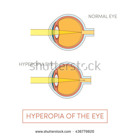 Farsightedness Stock Vectors, Images & Vector Art.