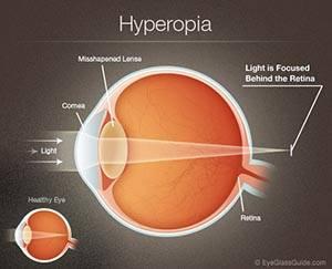 Farsightedness (Hyperopia).