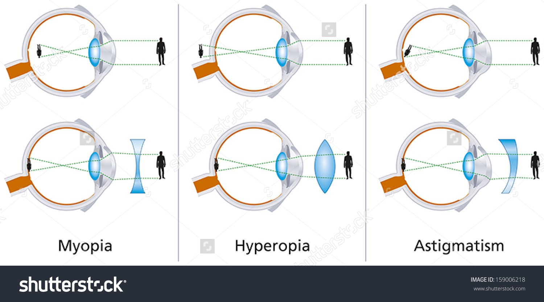 Illustration Three Visual Defects Myopia Hyperopia Stock Vector.