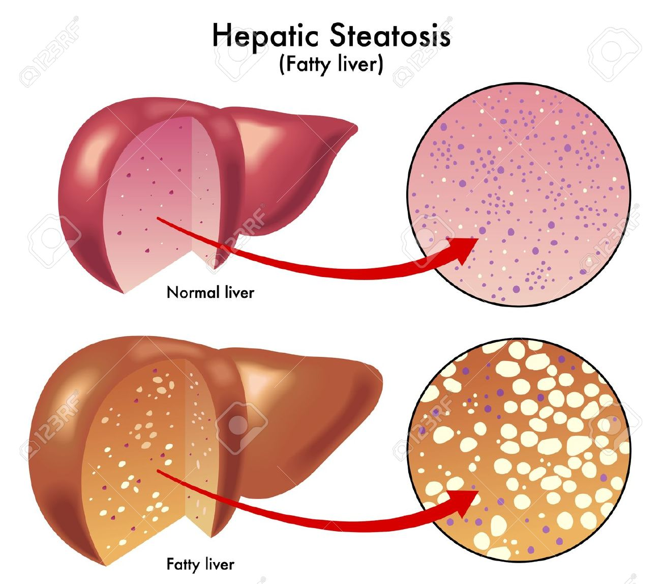 Hepatic Steatosis Royalty Free Cliparts, Vectors, And Stock.