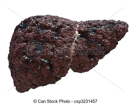 Fatty liver Clip Art and Stock Illustrations. 184 Fatty liver EPS.