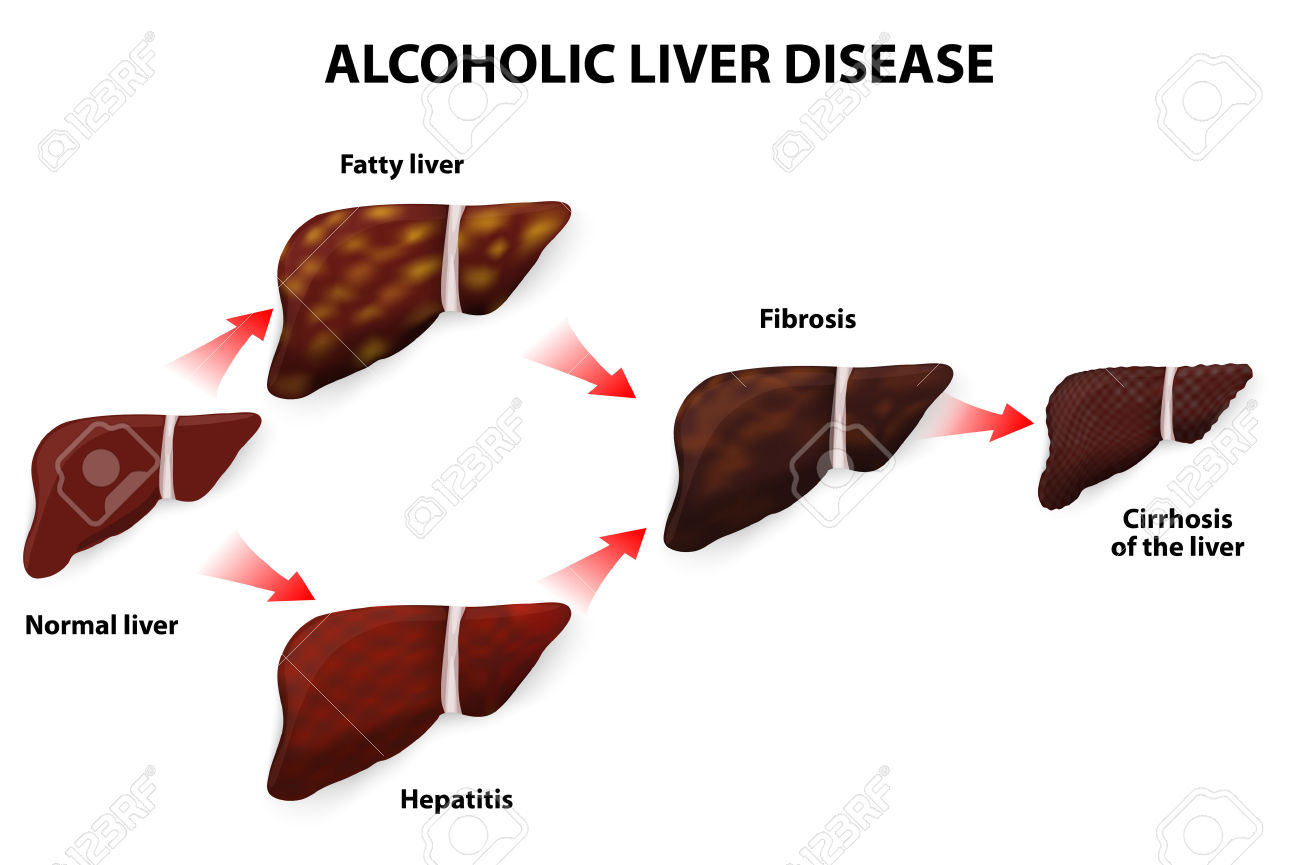Alcoholic Liver Disease Fatty Liver, Fibrosis, Hepatitis.