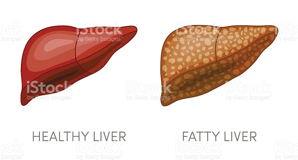 Fatty Liver Disease stock vector art 542329290.