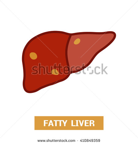 Fatty Liver Stock Images, Royalty.