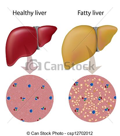 Vector Clip Art of Fatty liver disease, eps10.