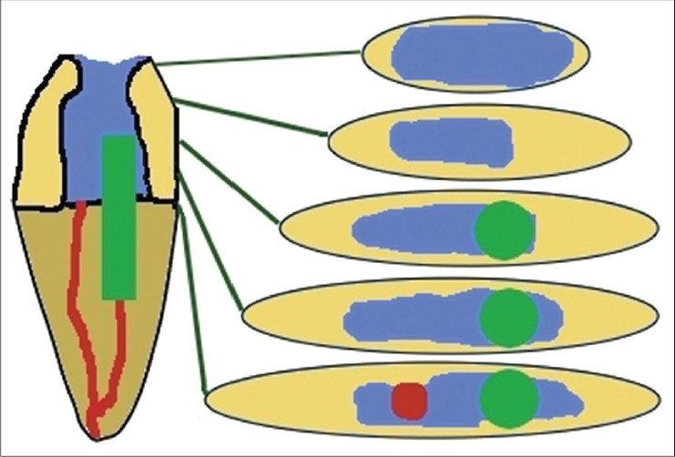 On the ferrule effect and the biomechanical stability of teeth.