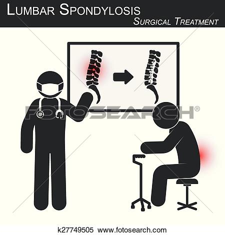Clipart of Doctor explain about surgical treatment of lumbar.