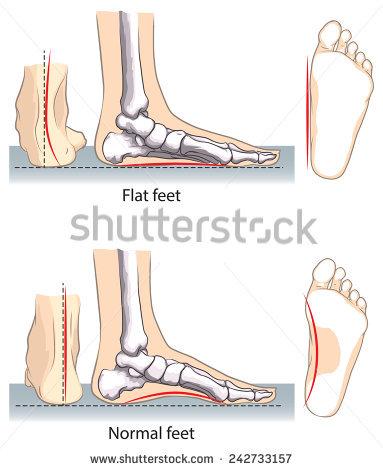Flatfoot Stock Vectors, Images & Vector Art.