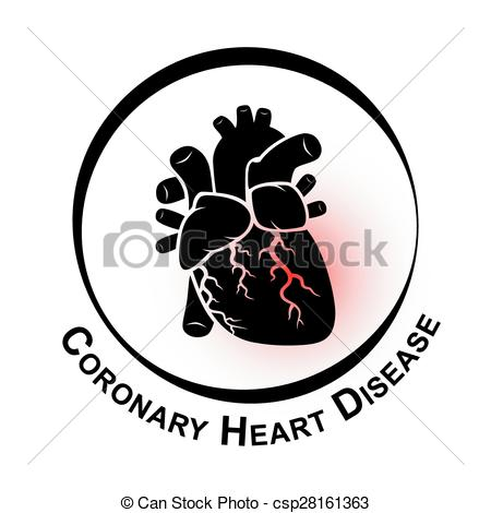 Coronary Artery Disease Clip Art.
