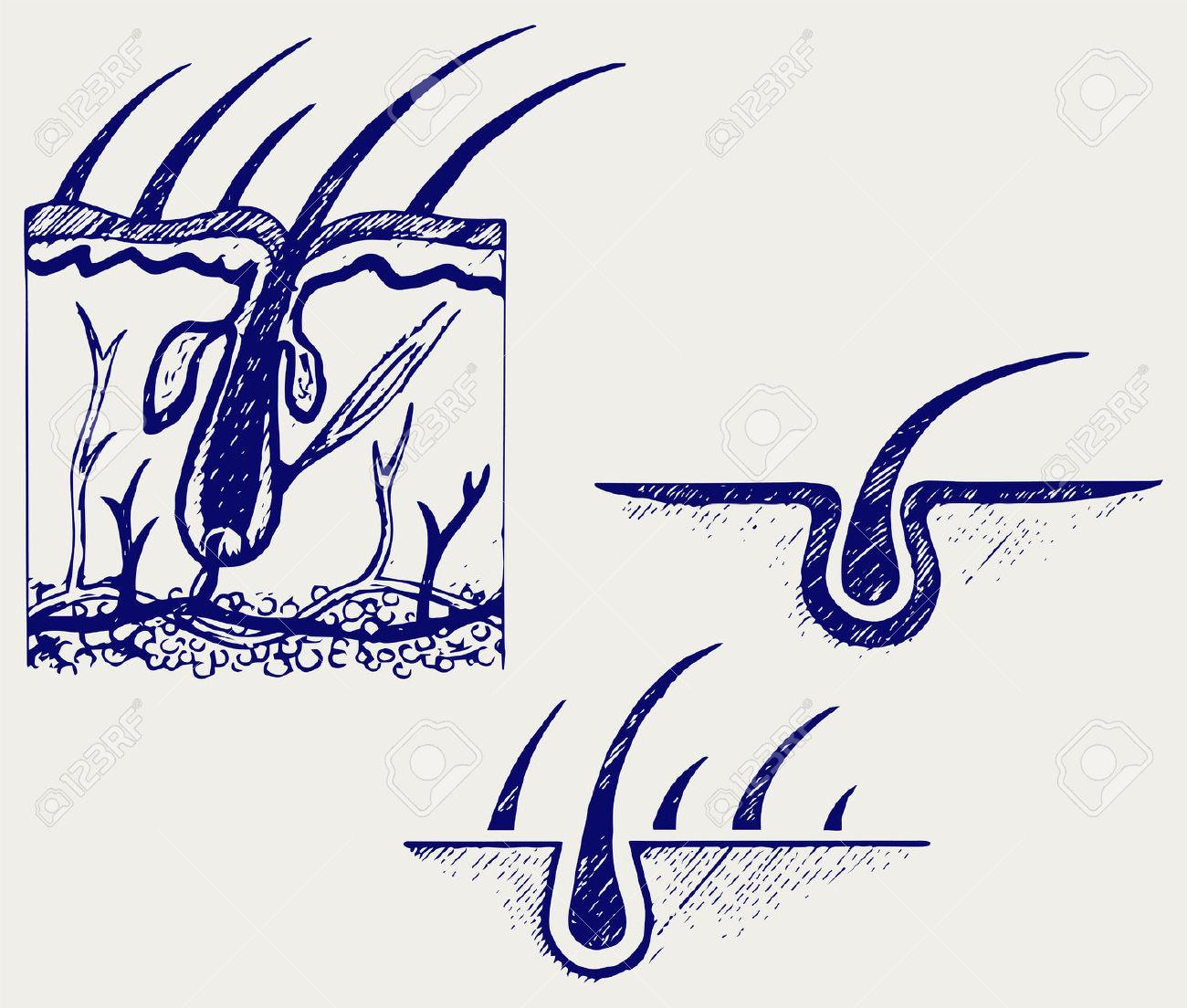 Hair Follicle Clip Art.