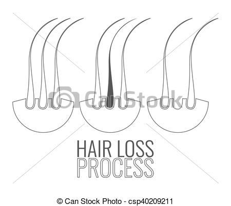 Vector Clip Art of Hair follicles loss process.