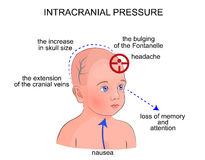 Cranial Stock Illustrations.