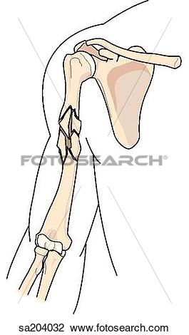 Clip Art of Comminuted (multiple) fracture of the humerus.