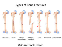 Fracture Illustrations and Stock Art. 20,540 Fracture illustration.