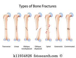 Fracture Clip Art EPS Images. 3,382 fracture clipart vector.
