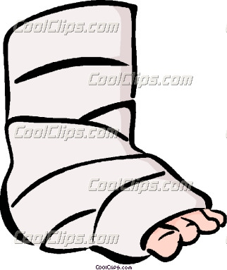 Ankle Fracture Clipart.