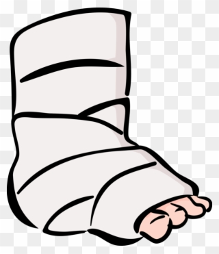 Free PNG Broken Leg Clip Art Download.
