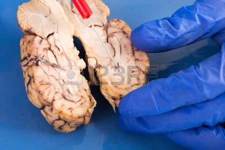Frontal Lobe Stock Photos Images, Royalty Free Frontal Lobe Images.