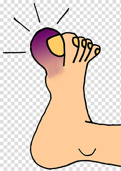 Toe Foot Nail , Frostbite transparent background PNG clipart.