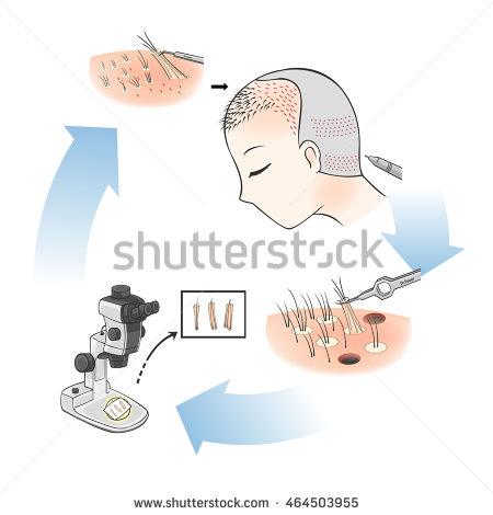 Transplantation Stock Photos, Royalty.