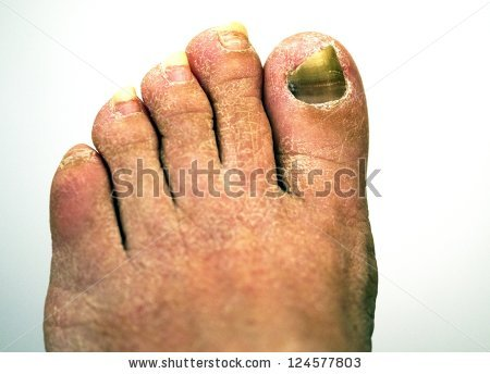 Toenail Fungus Stock Photos, Royalty.
