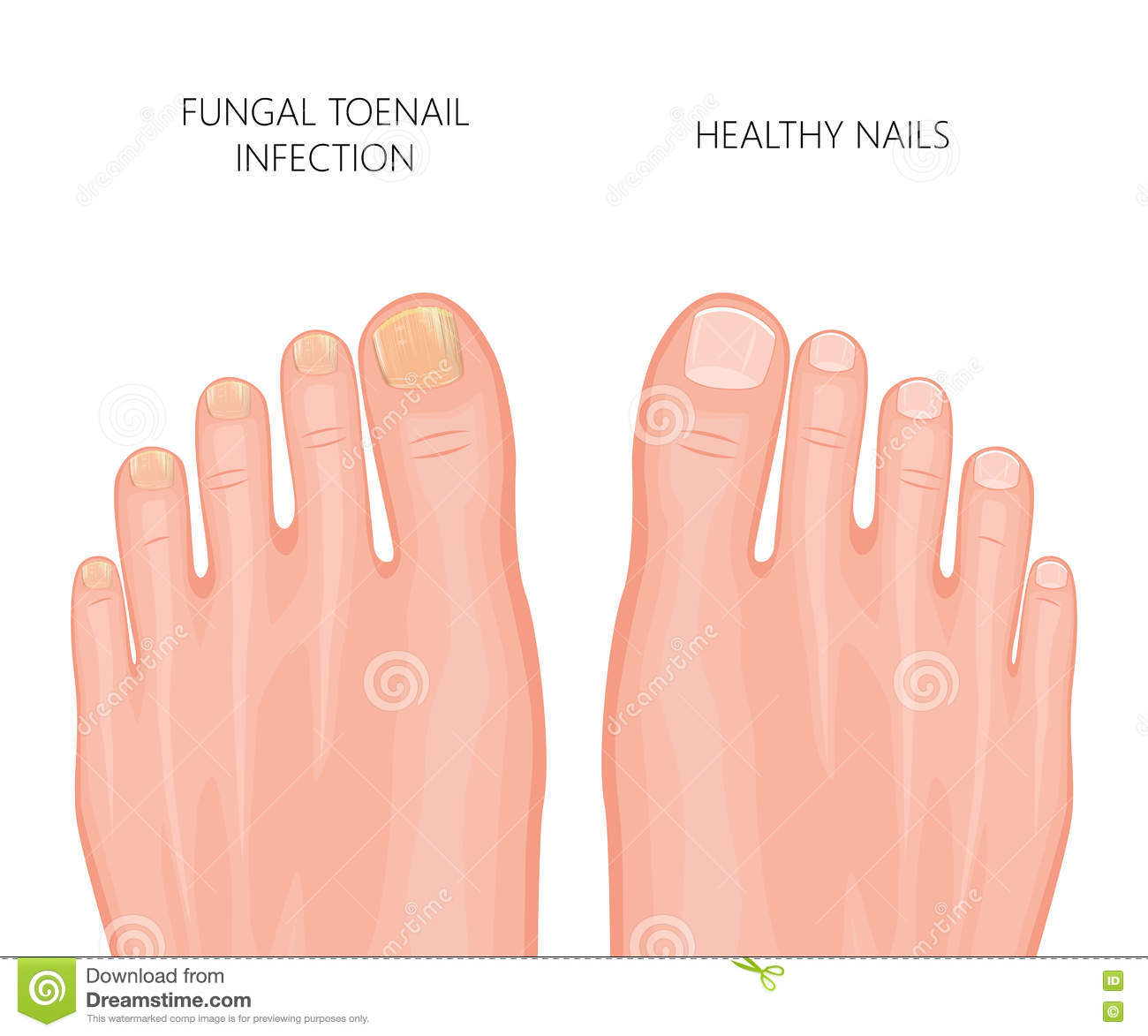 Foot Fungus Stock Illustrations.